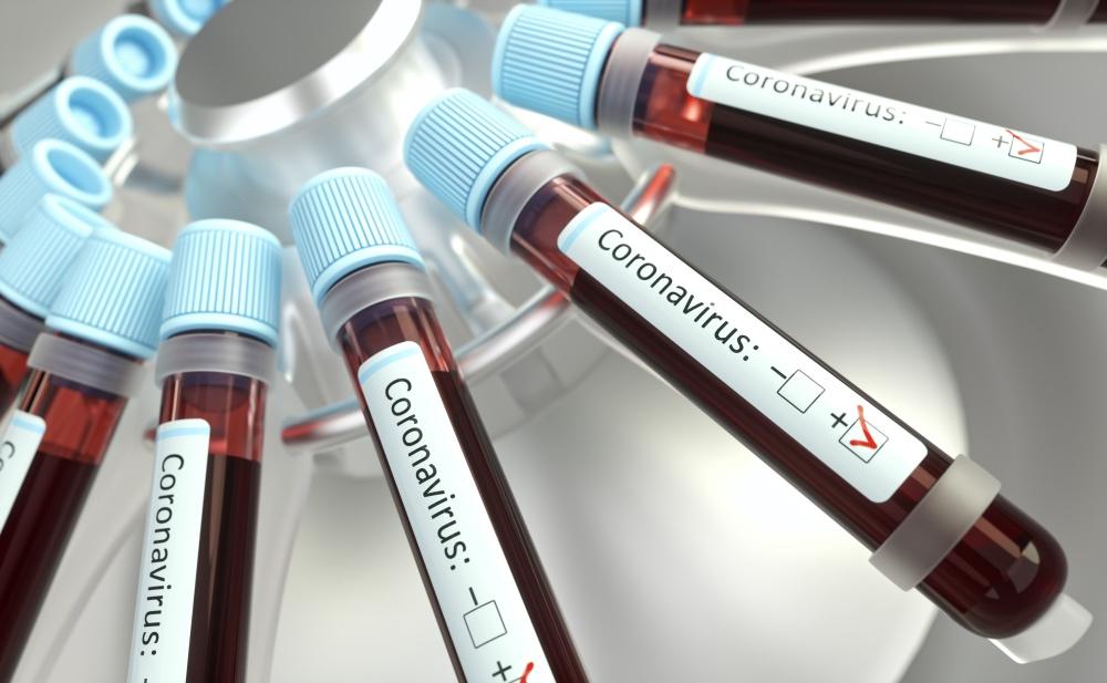 Autoridades de salud reportan tres nuevas muertes por coronavirus en RD