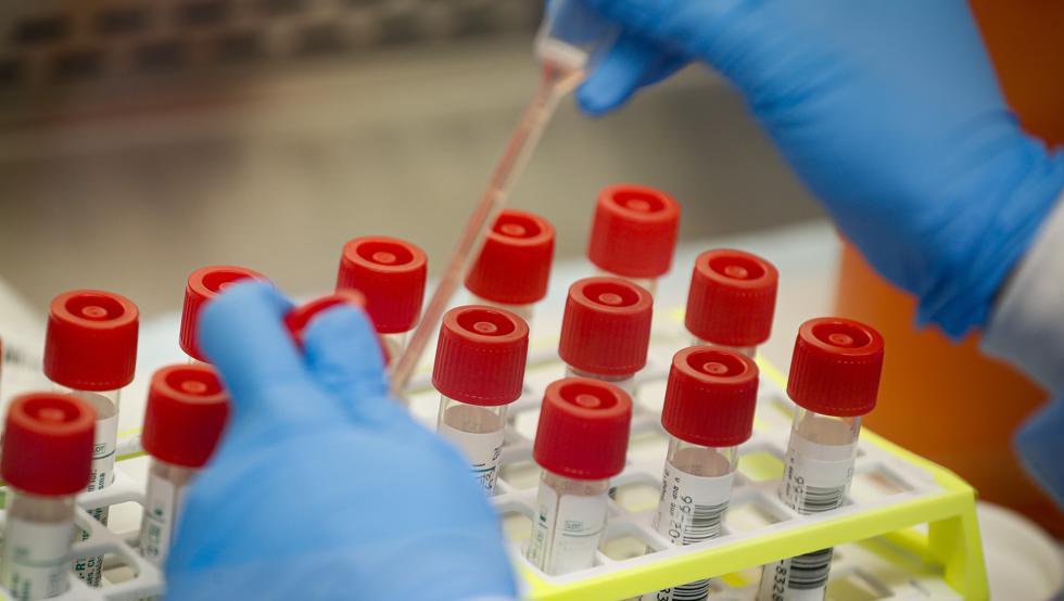 Científicos de la Universidad de Oxford crean prueba que detecta coronavirus en cinco minutos