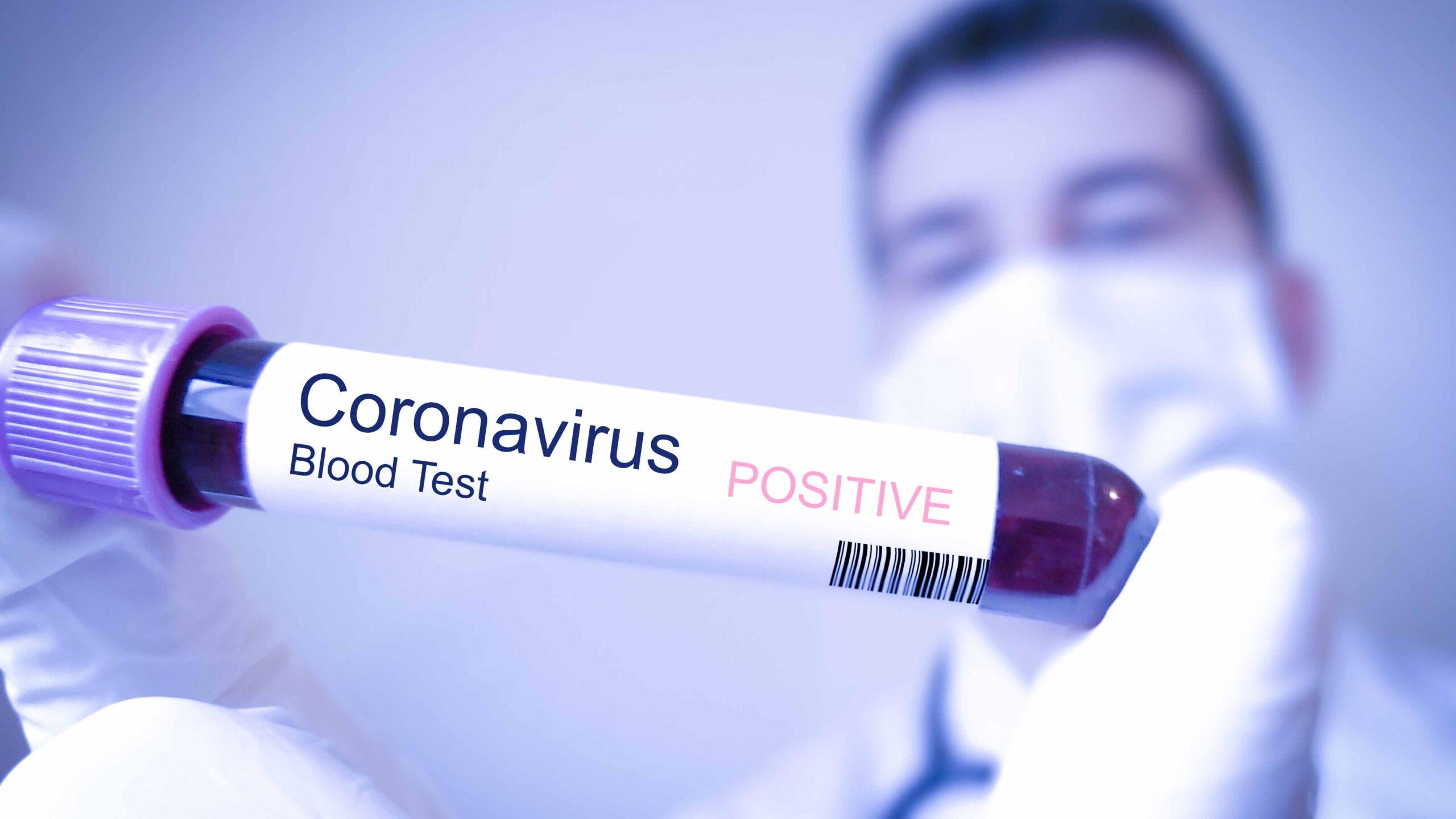 Cinco nuevas defunciones por coronavirus, ninguna ocurrió en las últimas horas